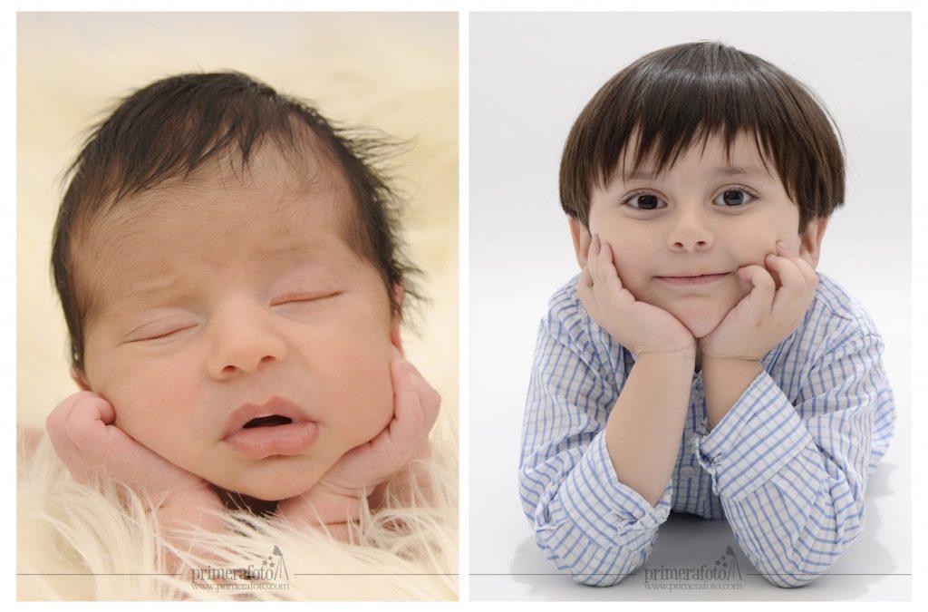 Marc, al nacer y 3 años después